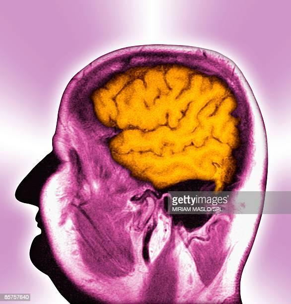 Normal human brain, profile