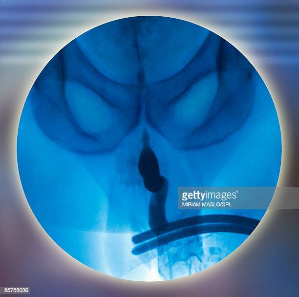 normal male urethra - urethra stock pictures, royalty-free photos & images