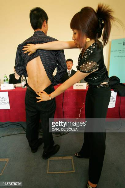 North Korean political camp prison escapee Shin DongHyok aided by his translator shows the scars on his back which he says was inflicted by North...