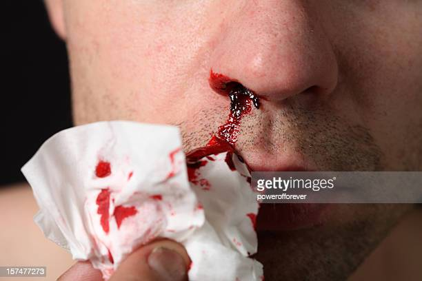 nose bleed - bloody gore stock pictures, royalty-free photos & images