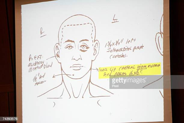 Note from the prosecution's witness Dr. Louis Pena, who performed the autopsy on Lana Clarkson for the Los Angeles County coroner's office, is...