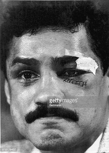 November 15 1982Miami Florida Alexis Arguello who lost his bid to win the Junior Welterweight title from Aaron Pryor November 12th attends a press...