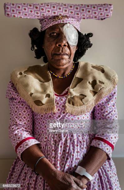 An Herero woman waits for her bandages to be removed after undergoing cataract surgery the previous day at Omaruru District Hospital Most of the...