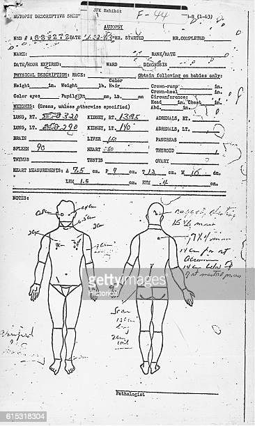 November 22 1963 autopsy descriptive sheet Included as an exhibit for the House Assassinations Committee formed in 1976