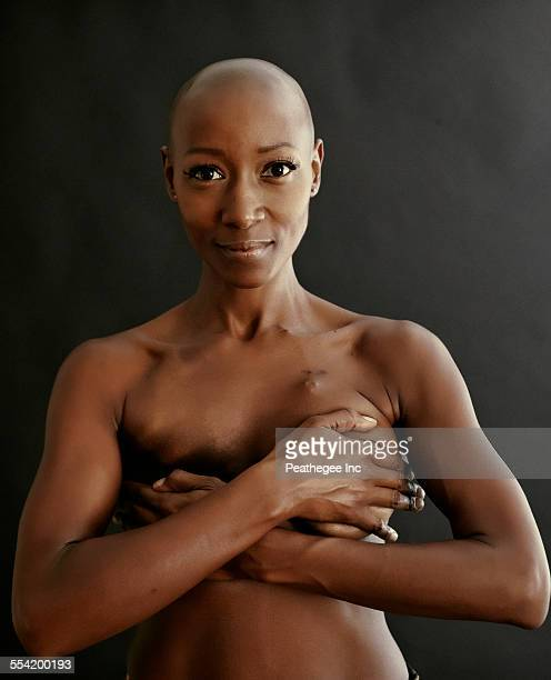 african american penis cancer