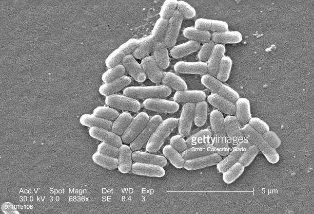 Number of Gram-negative Escherichia coli bacteria of the strain O157:H7, revealed in the 6836x magnified scanning electron microscopic image, 2006....