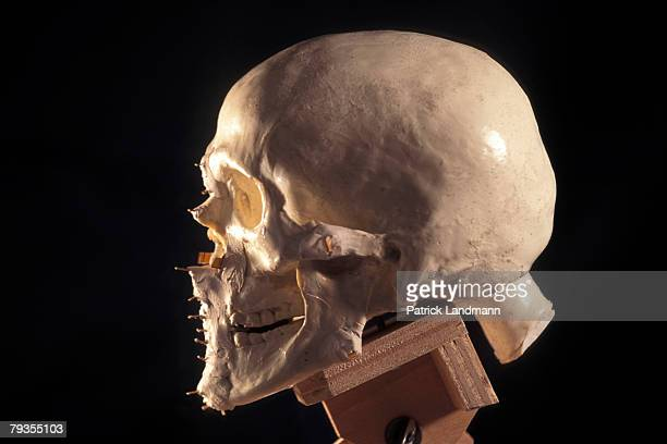 Numbered pegs placed on a model of Otzi's skull represent the layers of fatty tissue matching the anthropological norms for his age sex and body mass...