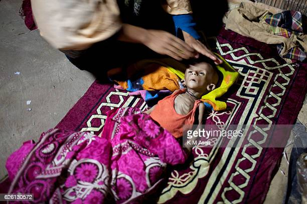 CAMP TEKNAF TEKNAF COX BAZER BANGLADESH Nur Begam sits with her 6 month old son's dead body in unregistered leda rohingya refugee camp in Teknaf...