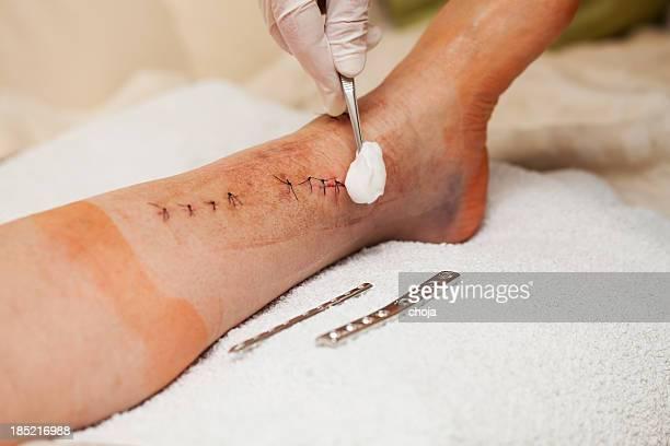 enfermera en el trabajo en paciente después de pierna rotura de funcionamiento - herida puntos fotografías e imágenes de stock