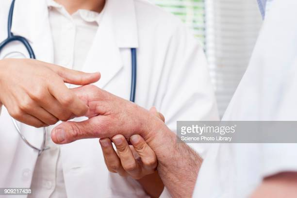nurse checking mans hand joints - rheumatism stock pictures, royalty-free photos & images