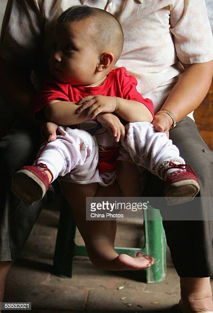 A nurse holds oneyearold Wei Wei a young child with three legs and both female male reproductive organs at the Dongzhimen Hospital on August 29 2005...
