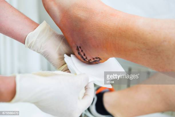 nurse is taking care of patient with achilles tendon injury - medical stitches stock photos and pictures
