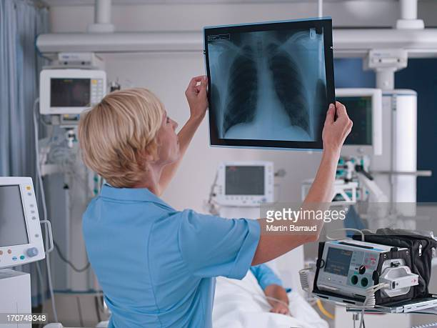 Nurse reviewing x-ray