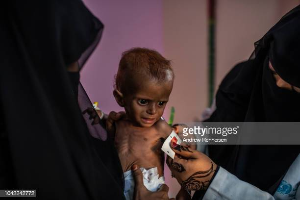 Nurses measure Ammar Khalid, ten months, while undergoing treatment for severe acute malnutrition at a health clinic on September 18, 2018 in Al...