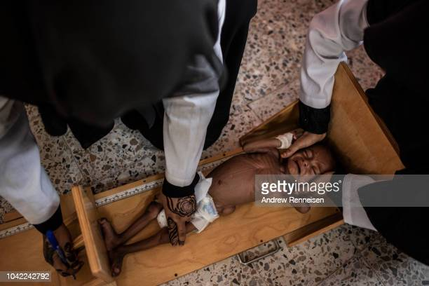 Nurses measure Moataz Ali, one year, while undergoing treatment for severe acute malnutrition at a health clinic on September 18, 2018 in Al...