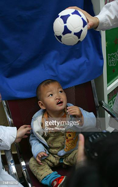 Nurses play with a child suffering from cleft lip and palate at Xian Jingxi Hospital during registration for treatment jointly administered by Jingxi...