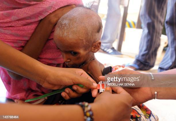 Nurses tend to a malnurished Malian refugee child at the Medecins sans Frontières medical center of the M'bere refugee camp on May 3 near Bassiknou...
