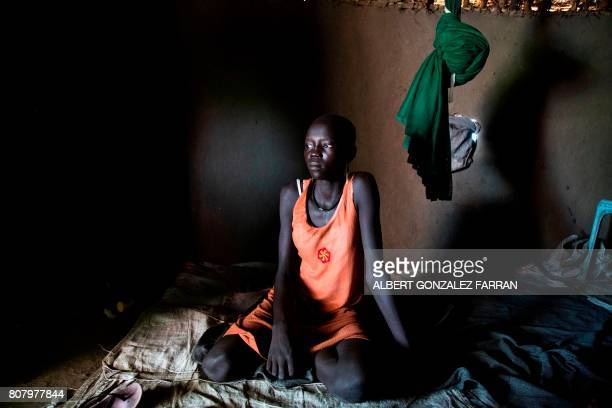 TOPSHOT Nyachiang Dual recovers from a suspected cholera infection in a relative's house in Padding near Lankien Jonglei South Sudan on July 2 2017...
