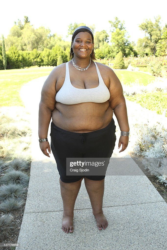 Extreme weight loss nyla