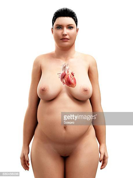 Obese woman's heart, artwork