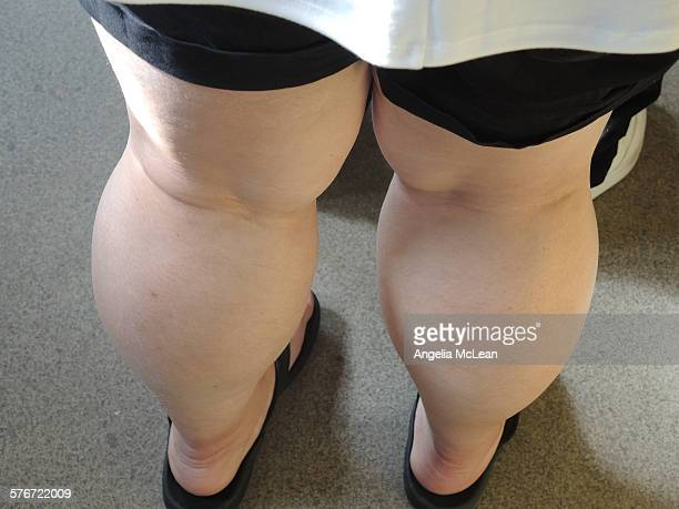 obese woman's legs - chubby legs stock photos and pictures