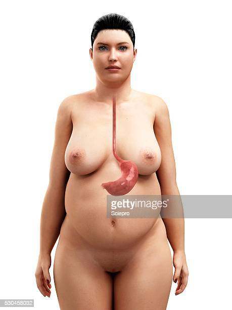 Obese woman's stomach, artwork