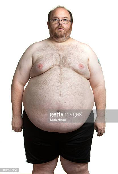 obesity - shirtless stock pictures, royalty-free photos & images