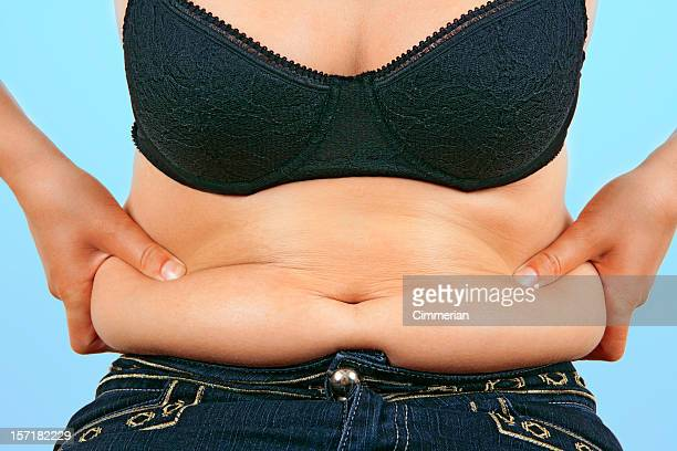 Obesity (overweight female belly)