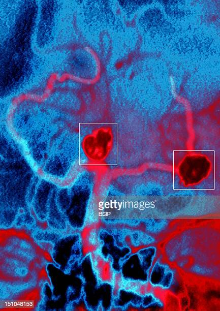 Occlusion Of Two Cerebral Artery Aneurysms Achieved Through The Insertion Of A Thin Platinum Coil Into The Aneurysm Which Is Then Detached By...