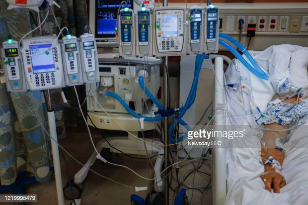 A COVID19 patient in a medically induced coma is connected to lifesustaining devices providing blood pressure medication antibiotics sedation feeding...