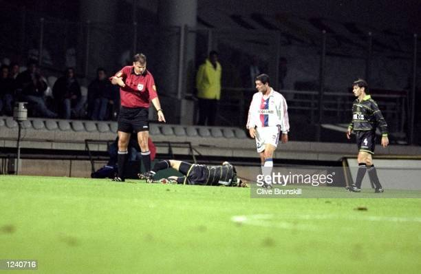Henrik Larsson of Celtic suffers a broken leg during the UEFA Cup second round first leg match against Lyon at the Stade Gerland in Lyon France...