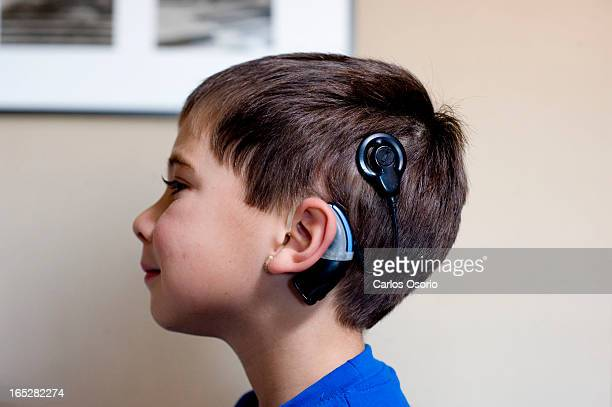 October 18 2009 Cochlear Implants James and his wife Jule are parents of two deaf children Marc 5 and Jenna who hear with Cochlear implants They will...