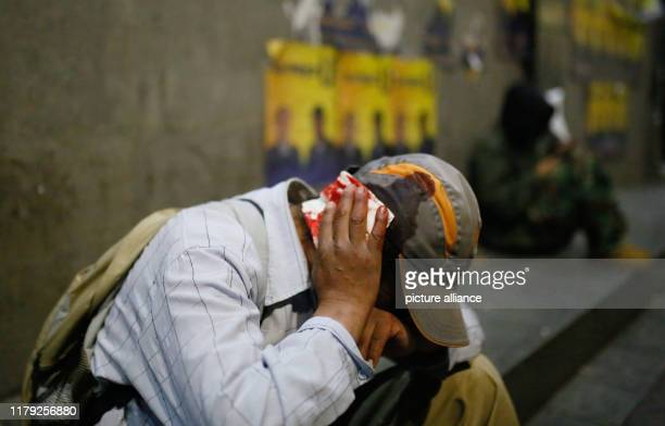 A demonstrator is injured at the head after beeing hit by a stone during clashes Since the results of the presidential elections were announced...