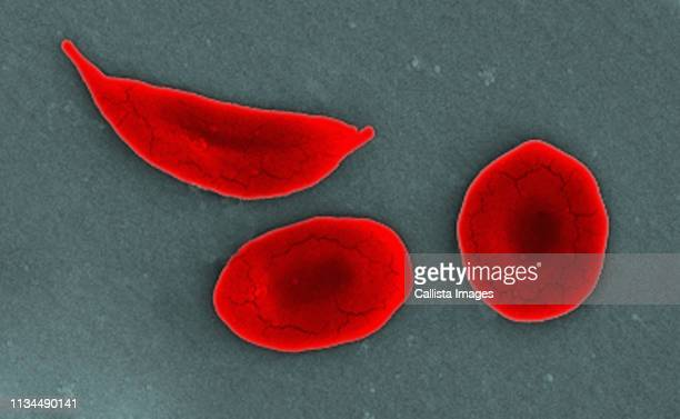 sem of sickle cell and normal red blood cells - sem stock pictures, royalty-free photos & images