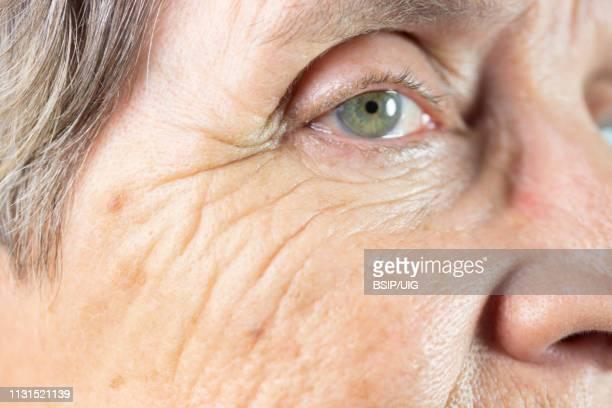 old age spot - lentigo fotografías e imágenes de stock