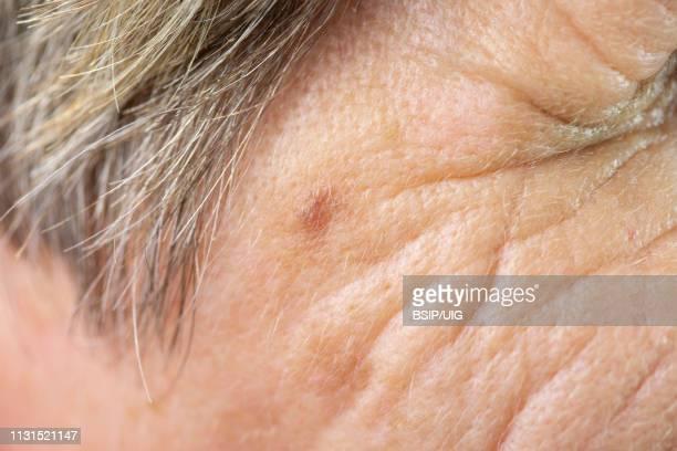 old age spot - macchie sulla pelle foto e immagini stock