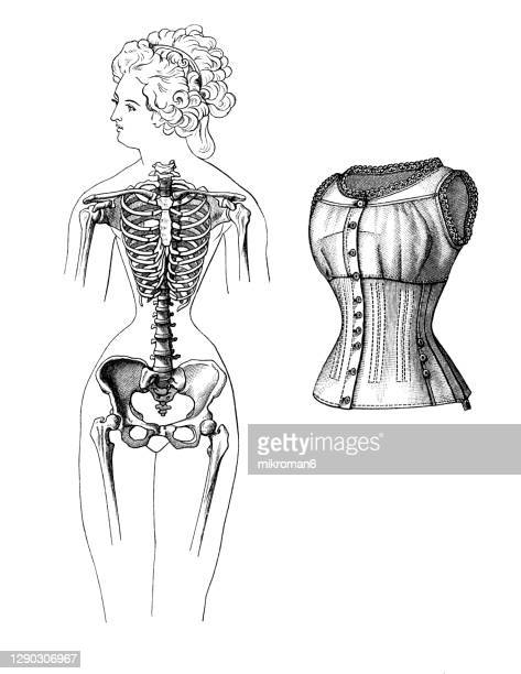 old engraved illustration of a female skeleton deformed by wearing a corset - corset stock pictures, royalty-free photos & images