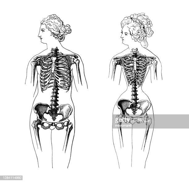 old engraved illustration of a female skeletons normal and deformed by wearing a corset - corset stock pictures, royalty-free photos & images