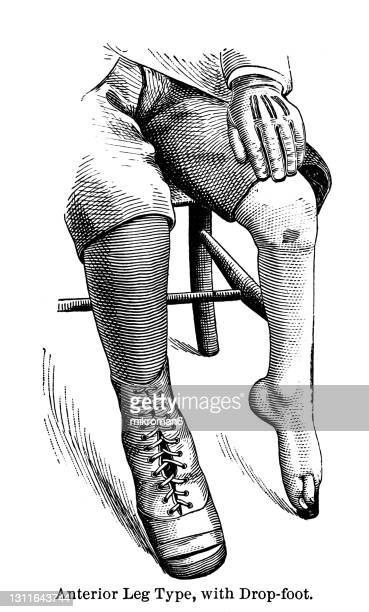 old engraved illustration of anterior leg type, with drop-foot - human body part stock pictures, royalty-free photos & images