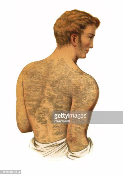 old engraved illustration of skin diseases, ichthyosis - male likeness stock pictures, royalty-free photos & images