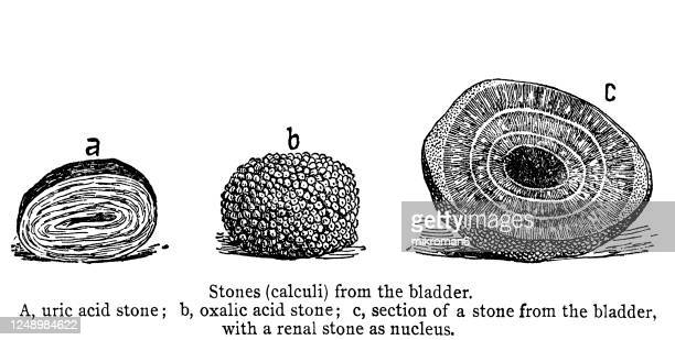 old engraved illustration of stones (calculi) from the bladder - human kidney stock pictures, royalty-free photos & images