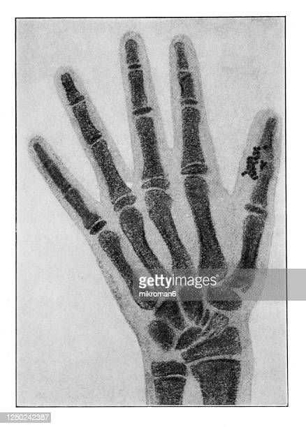 old engraved illustration of x-rayed parts of the human body - human body part foto e immagini stock