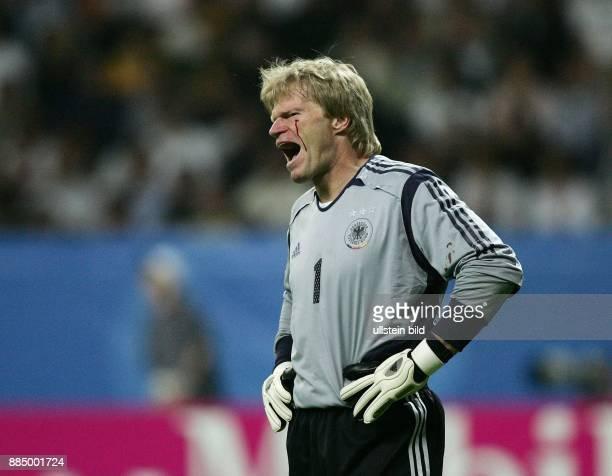 Oliver Kahn Torhüter Nationalmannschaft D mit blutender Verletzung unter dem Auge