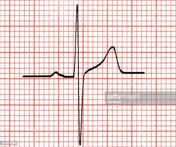 olny a ecg wave - cardiac conduction system stock pictures, royalty-free photos & images