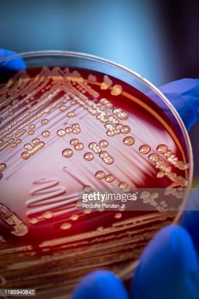 mrsa on blood agar plate - sepsis stock pictures, royalty-free photos & images