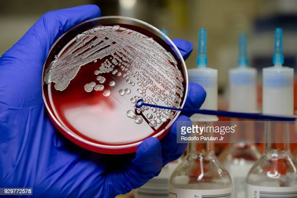 MRSA on blood agar plate