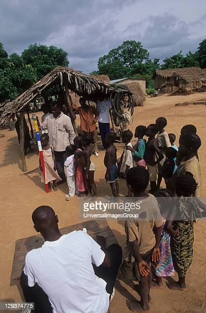 Onchoceriasis Ivory Coast Bouake Who River Blindness Prevention Measuring Children To Determine Correct Dose For Ivermectin Tablets The Dots On The...