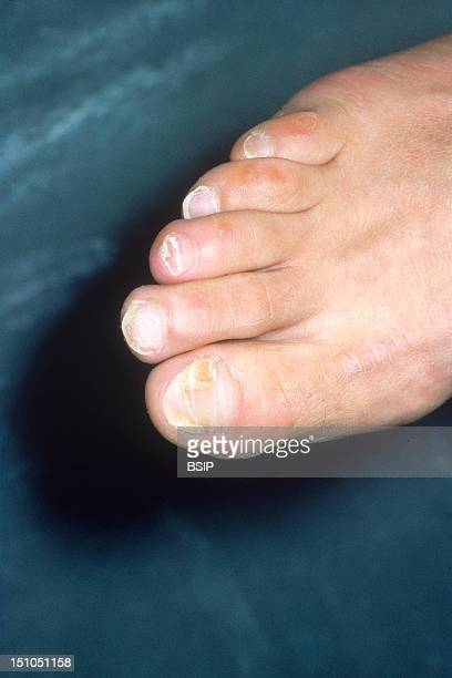 Onchomycosis Mycosis Of The Great Toe Nail Trichophytosis Infection By The Dermatophyte Trichophyton