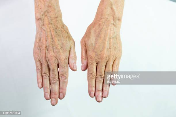 one hand with spots of old age and the other one laser treated - keratosis fotografías e imágenes de stock