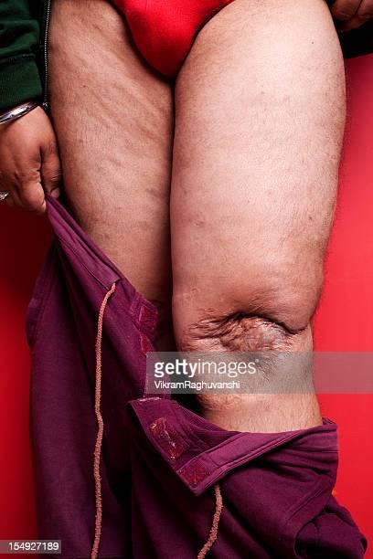 Ein Mann mit seinem Broken Dislocated Knie nach Betrieb